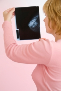 According to a recent report, breast cancer misdiagnosis affects one in three women.